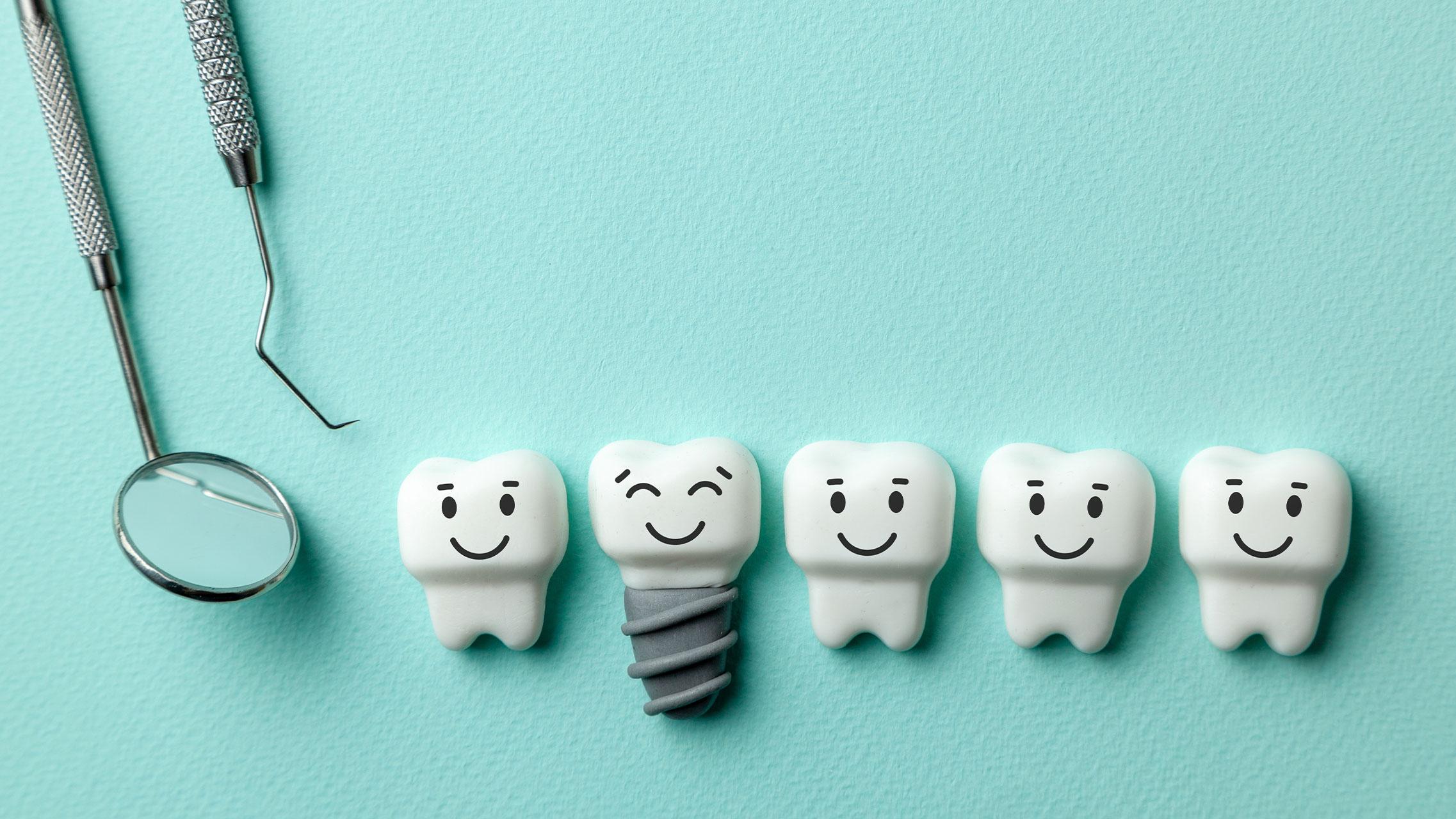 Was Sie über Zahnimplantate wissen sollten