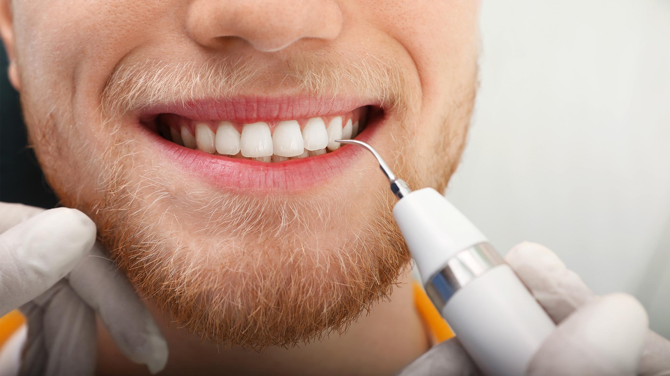 Was ist eigentlich Zahnstein?