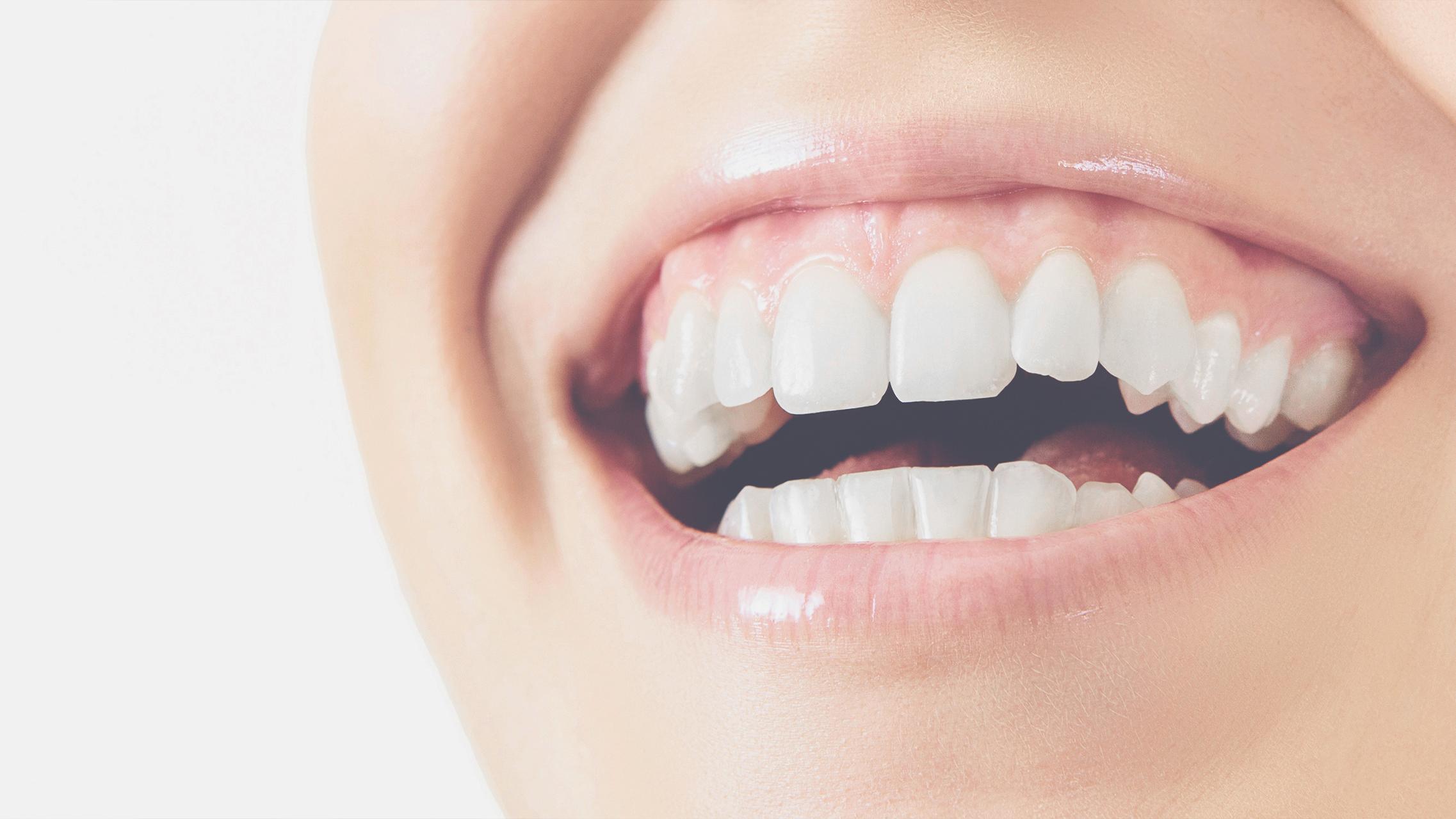 Was sind eigentlich Zahnfleischtaschen?